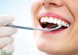 دندانپزشکی آرسته در شیراز [object object] مراقبت های پس از درمان ریشه 14 260x185  مطالب دندانپزشکی 14 260x185