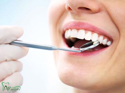 دندانپزشکی آرسته در شیراز پروتز ثابت و متحرک پروتز ثابت و متحرک 14