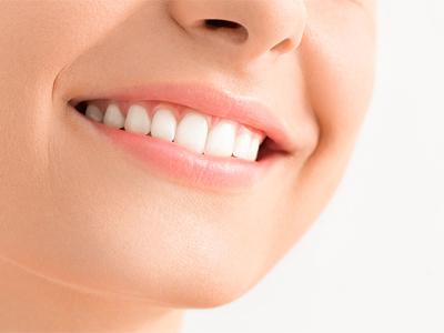 دندانپزشکی آرسته در شیراز  کامپوزیت دندان 77