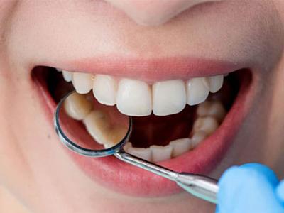 دندانپزشکی آرسته در شیراز  کامپوزیت دندان 78