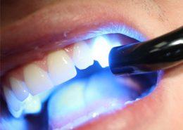 [object object] مراقبت های پس از درمان ریشه Untitled 1 260x185  مطالب دندانپزشکی Untitled 1 260x185