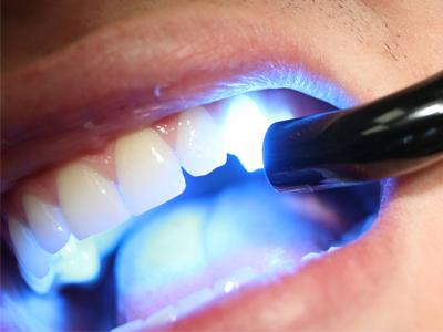 کامپوزیت دندان Untitled 1