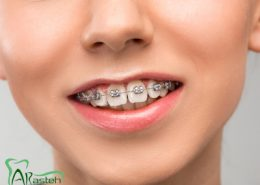 [object object] مراقبت های پس از درمان ریشه protrogen 260x185  مطالب دندانپزشکی protrogen 260x185