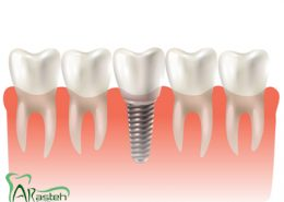 [object object] مراقبت های پس از درمان ریشه taj implant 260x185  مطالب دندانپزشکی taj implant 260x185