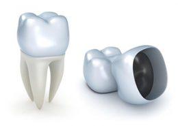 روکش دندان [object object] مراقبت های پس از درمان ریشه 84 260x185  مطالب دندانپزشکی 84 260x185