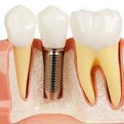 dental-implant ايمپلنت دندانى (dental implant) ايمپلنت دندانى (Dental Implant) afaf 180x180