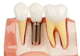 dental-implant [object object] مراقبت های پس از درمان ریشه afaf 260x183  مطالب دندانپزشکی afaf 260x183