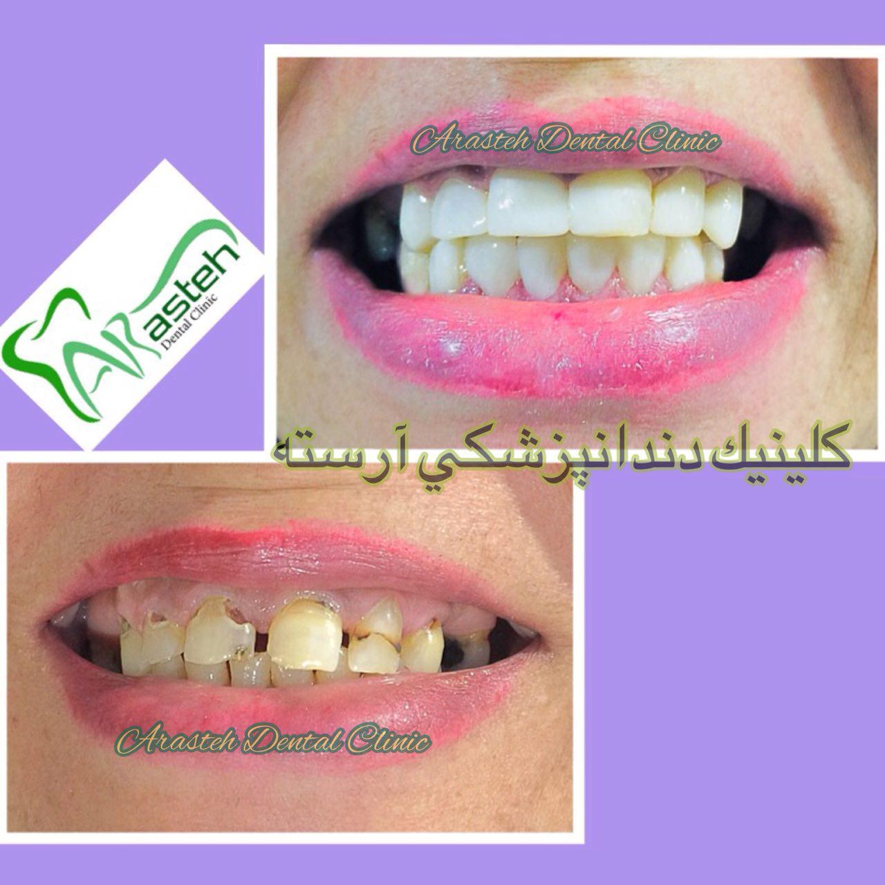 زیبا بخند تصاویر قبل و بعد دندانپزشکی،قبل و بعد،before and after قبل و بعد درمان clinicarasteh4