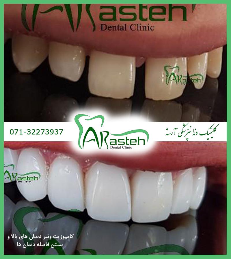 کامپوزیت ونیر در شیراز تصاویر قبل و بعد دندانپزشکی،قبل و بعد،before and after قبل و بعد درمان composite veneer