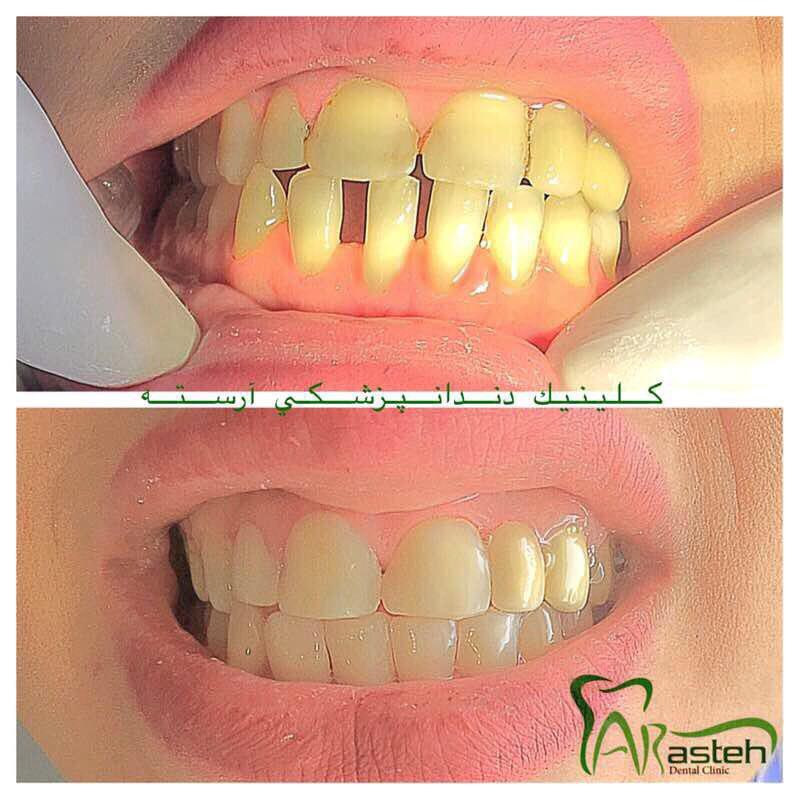 فیسینگ دندان کلینیک دندانپزشکی آرسته شیراز تصاویر قبل و بعد دندانپزشکی،قبل و بعد،before and after قبل و بعد درمان fising