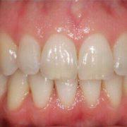 کريز لاین یا خط عمودی بر روی دندان کريز لاین یا خط عمودی بر روی دندان چیست؟ کريز لاین یا خط عمودی بر روی دندان چیست؟ kerizline 180x180