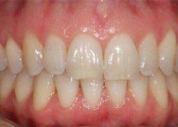 کريز لاین یا خط عمودی بر روی دندان [object object] مراقبت های پس از درمان ریشه kerizline 260x185  مطالب دندانپزشکی kerizline 260x185