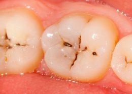 پوسیدگی دندان [object object] مراقبت های پس از درمان ریشه posedegi 260x185  مطالب دندانپزشکی posedegi 260x185