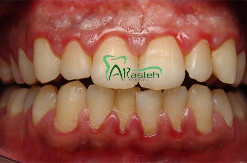 بیماری های لثه نشانه های مخفی بیماری های لثه نشانه های مخفی بیماری های لثه Gum disease 495x328