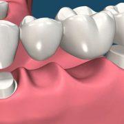 روکش های دندانی  انتخاب روکش مناسب برای دندان dental 180x180