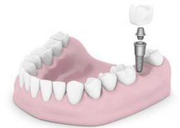 مراقبت پس از ایمپلنت [object object] مراقبت های پس از درمان ریشه 83 260x185  مطالب دندانپزشکی 83 260x185