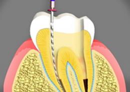 کانال ریشه [object object] مراقبت های پس از درمان ریشه root canal treatment 260x185  مطالب دندانپزشکی root canal treatment 260x185