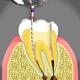 کانال ریشه  مراقبت های پس از ایمپلنت دندان root canal treatment 80x80