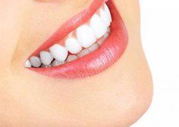 [object object] مراقبت های پس از درمان ریشه arasteh 260x185  مطالب دندانپزشکی arasteh 260x185