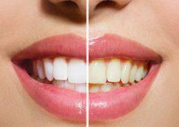 [object object] مراقبت های پس از درمان ریشه 6 260x185  مطالب دندانپزشکی 6 260x185