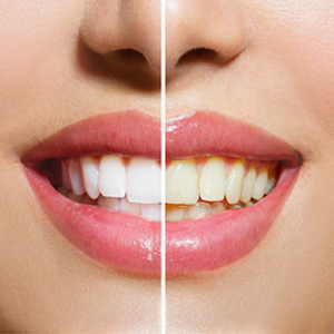 جرمگیری دندان و مراقبت های پس از جرمگیری 6