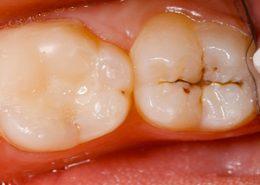 پوسیدگی دندان آراسته [object object] مراقبت های پس از درمان ریشه arasteh1 260x185  مطالب دندانپزشکی arasteh1 260x185