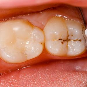 پوسیدگی دندان آراسته  سلاح های کوچک اما موثر برای مبارزه با پوسیدگی های دندان arasteh1