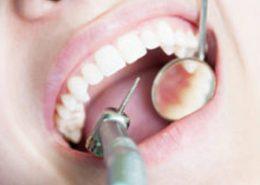 ترمیم دندان کلینیک دندانپزشکی آراسته شیراز [object object] مراقبت های پس از درمان ریشه 1 260x185  مطالب دندانپزشکی 1 260x185