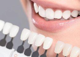 روکش دندان کلینیک دندانپزشکی آراسته [object object] مراقبت های پس از درمان ریشه 4 260x185  مطالب دندانپزشکی 4 260x185
