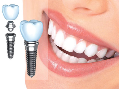 کلینیک دندانپزشکی آراسته  ایمپلنت های تک دندان 8