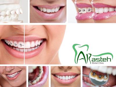 کلینیک دندانپزشکی آرسته  انواع ارتودنسی دندان 13