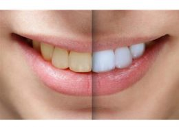 کلینیک دندانپزشکی آرسته [object object] مراقبت های پس از درمان ریشه 14 260x185  مطالب دندانپزشکی 14 260x185