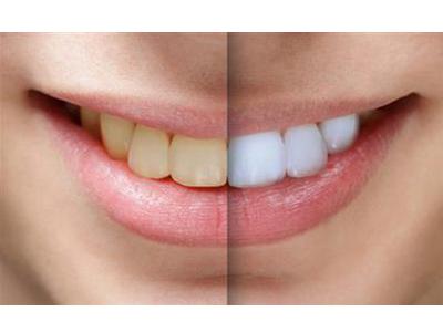 کلینیک دندانپزشکی آرسته  سفید کردن دندان (بلیچینگ) 14