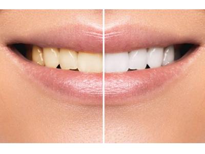 کلینیک دندانپزشکی آرسته  تاثیرات سیگار بر دندان 15