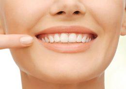 کلینیک تخصصی دندانپزشکی آرسته [object object] مراقبت های پس از درمان ریشه 41 260x185  مطالب دندانپزشکی 41 260x185
