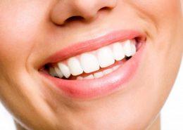 کلینیک دندانپزشکی آرسته [object object] مراقبت های پس از درمان ریشه 21 260x185  مطالب دندانپزشکی 21 260x185