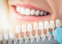 کلینیک دندانپزشکی آرسته [object object] مراقبت های پس از درمان ریشه 22 260x185  مطالب دندانپزشکی 22 260x185