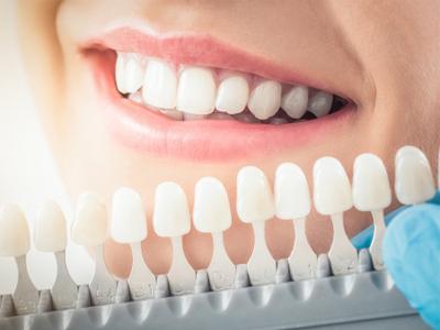 کلینیک دندانپزشکی آرسته  آیا می توان برای رفع کجی دندان از درمان لمینت دندان استفاده کرد؟ 22