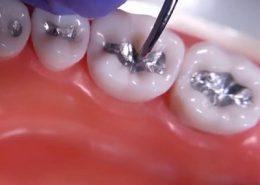 دندانپزشکی آرسته در شیراز [object object] مراقبت های پس از درمان ریشه 24 260x185  مطالب دندانپزشکی 24 260x185
