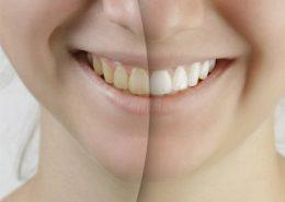 دندانپزشکی آرسته در شیراز [object object] مراقبت های پس از درمان ریشه 25 260x185  مطالب دندانپزشکی 25 260x185