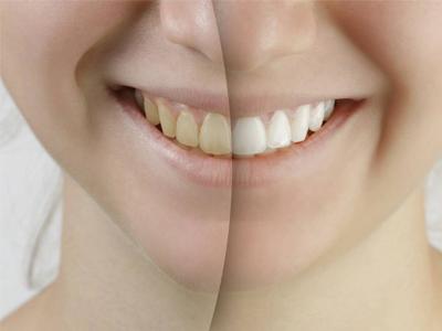 دندانپزشکی آرسته در شیراز  تاثیر منفی قهوه بر رنگ کامپوزیت دندان 25