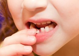 دندانپزشکی آرسته در شیراز [object object] مراقبت های پس از درمان ریشه 26 260x185  مطالب دندانپزشکی 26 260x185