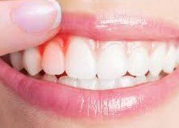 دندانپزشکی آرسته در شیراز [object object] مراقبت های پس از درمان ریشه 30 260x185  مطالب دندانپزشکی 30 260x185