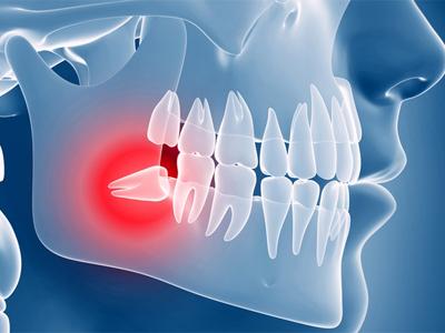 دندانپزشکی آرسته در شیراز  جراحی دندان عقل نهفته 35