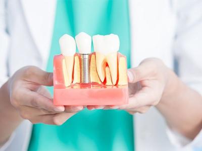 دندانپزشکی آرسته در شیراز ایمپلنت در شیراز ایمپلنت در شیراز با لیزر 33