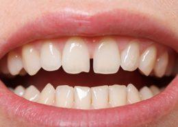 دندانپزشکی آرسته در شیراز [object object] مراقبت های پس از درمان ریشه 53 260x185  مطالب دندانپزشکی 53 260x185