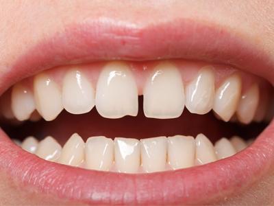 دندانپزشکی آرسته در شیراز فاصله بین دندان رفع فاصله بین دندان ها 53