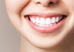انتخاب رنگ کامپوزیت ونیر [object object] مراقبت های پس از درمان ریشه composite 260x185  مطالب دندانپزشکی composite 260x185