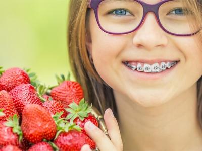 دندانپزشکی آرسته در شیراز ارتودنسی دندان رژیم غذایی مناسب در دوران درمان ارتودنسی 59