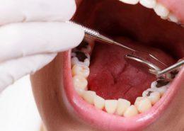 دندانپزشکی آرسته در شیراز [object object] مراقبت های پس از درمان ریشه 60 260x185  مطالب دندانپزشکی 60 260x185